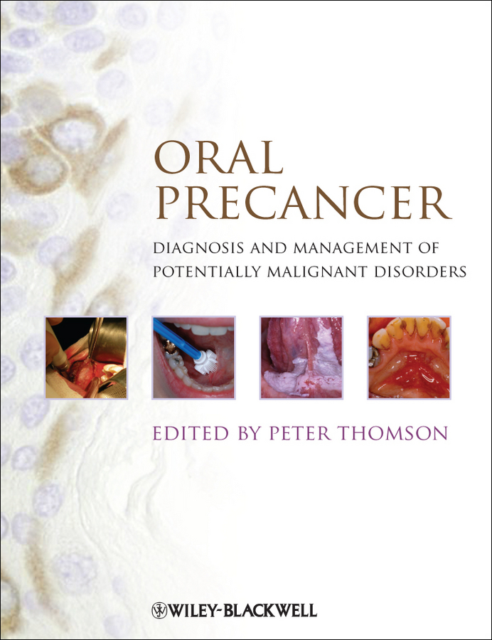 Peter Thomson Oral Precancer. Diagnosis and Management of Potentially Malignant Disorders