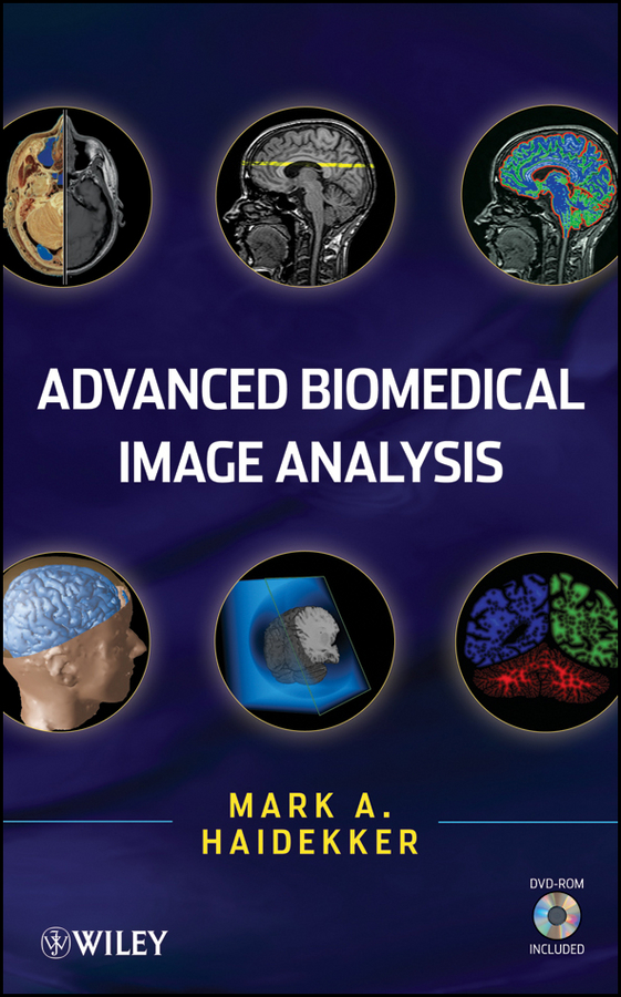 Mark Haidekker Advanced Biomedical Image Analysis обложка для паспорта printio ice cream