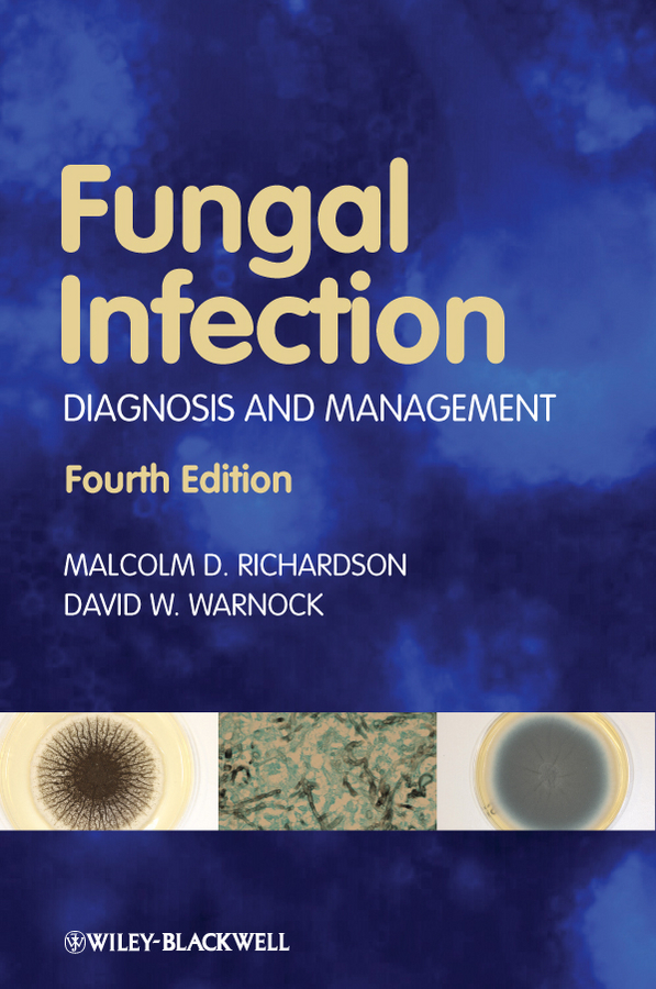 Warnock David W. Fungal Infection. Diagnosis and Management цена
