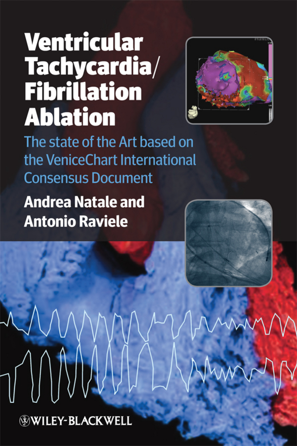 Raviele Antonio Ventricular Tachycardia / Fibrillation Ablation. The state of the Art based on the VeniceChart International Consensus Document intra and inter frames based on video compression techniques