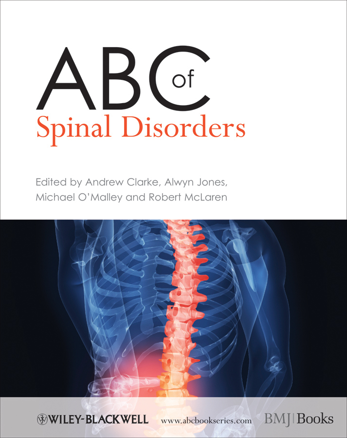 Michael O'Malley ABC of Spinal Disorders