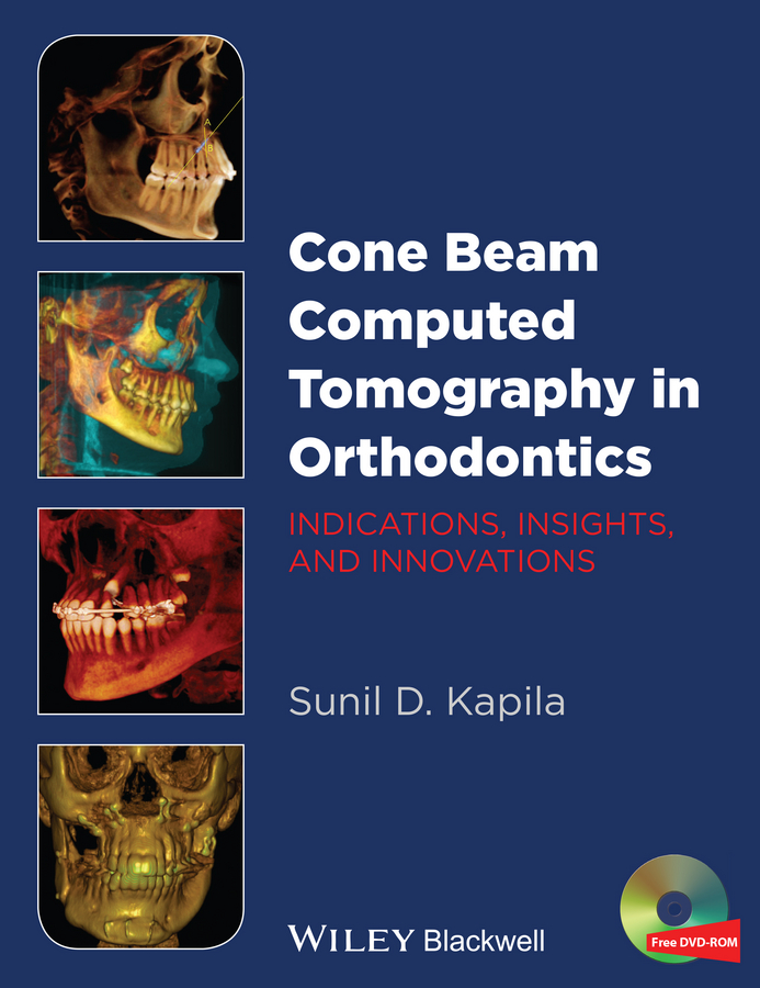 Sunil Kapila D. Cone Beam Computed Tomography in Orthodontics. Indications, Insights, and Innovations birte melsen adult orthodontics