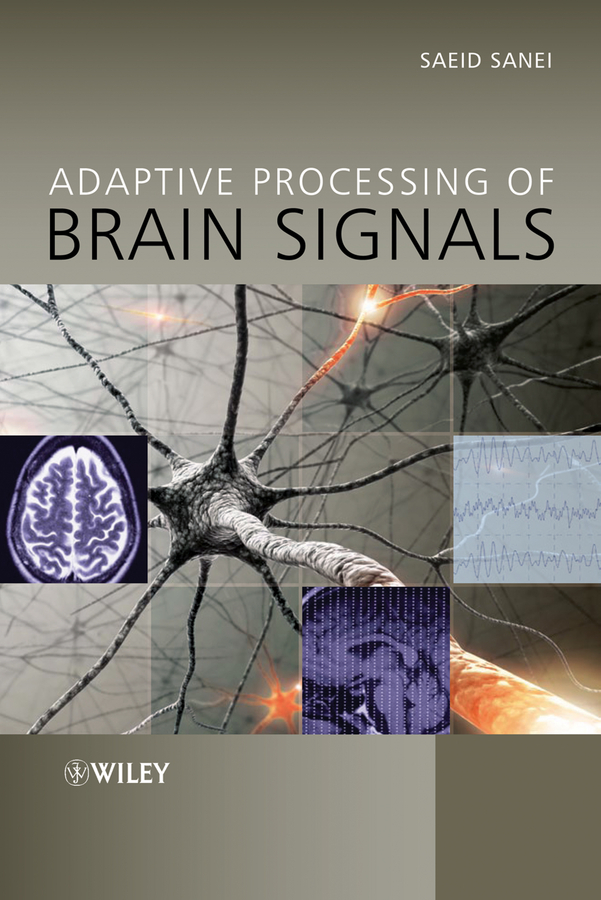 Saeid Sanei Adaptive Processing of Brain Signals