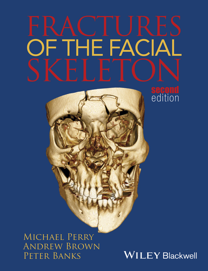 Andrew Brown Fractures of the Facial Skeleton michael miloro management of complications in oral and maxillofacial surgery