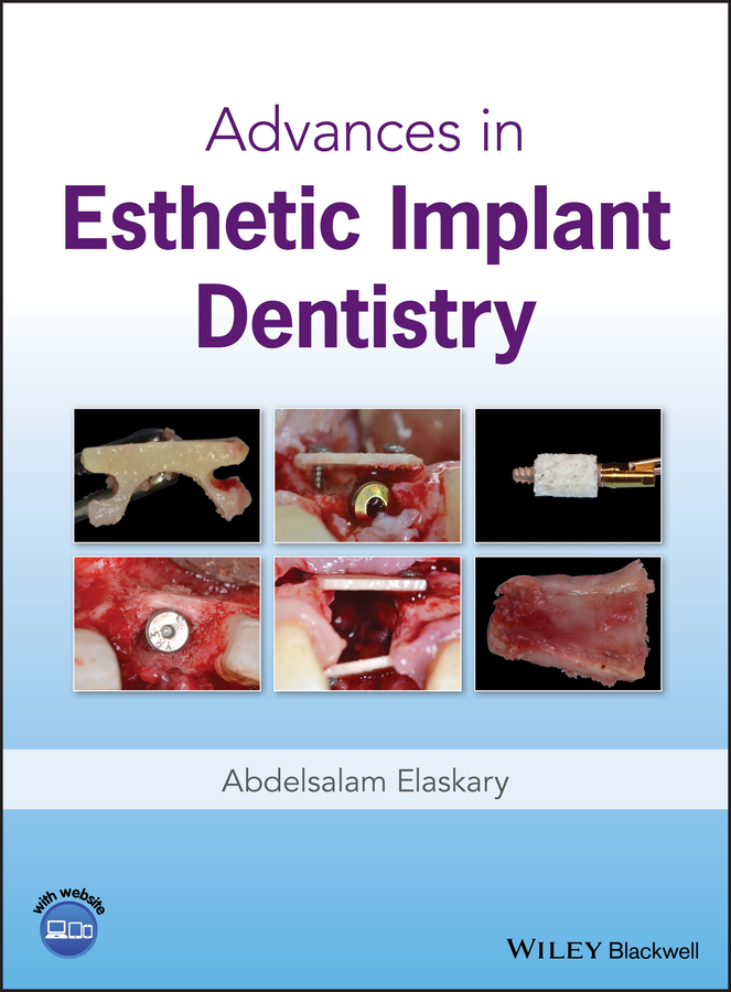 Abdelsalam Elaskary Advances in Esthetic Implant Dentistry joseph choukroun platelet rich fibrin in regenerative dentistry biological background and clinical indications