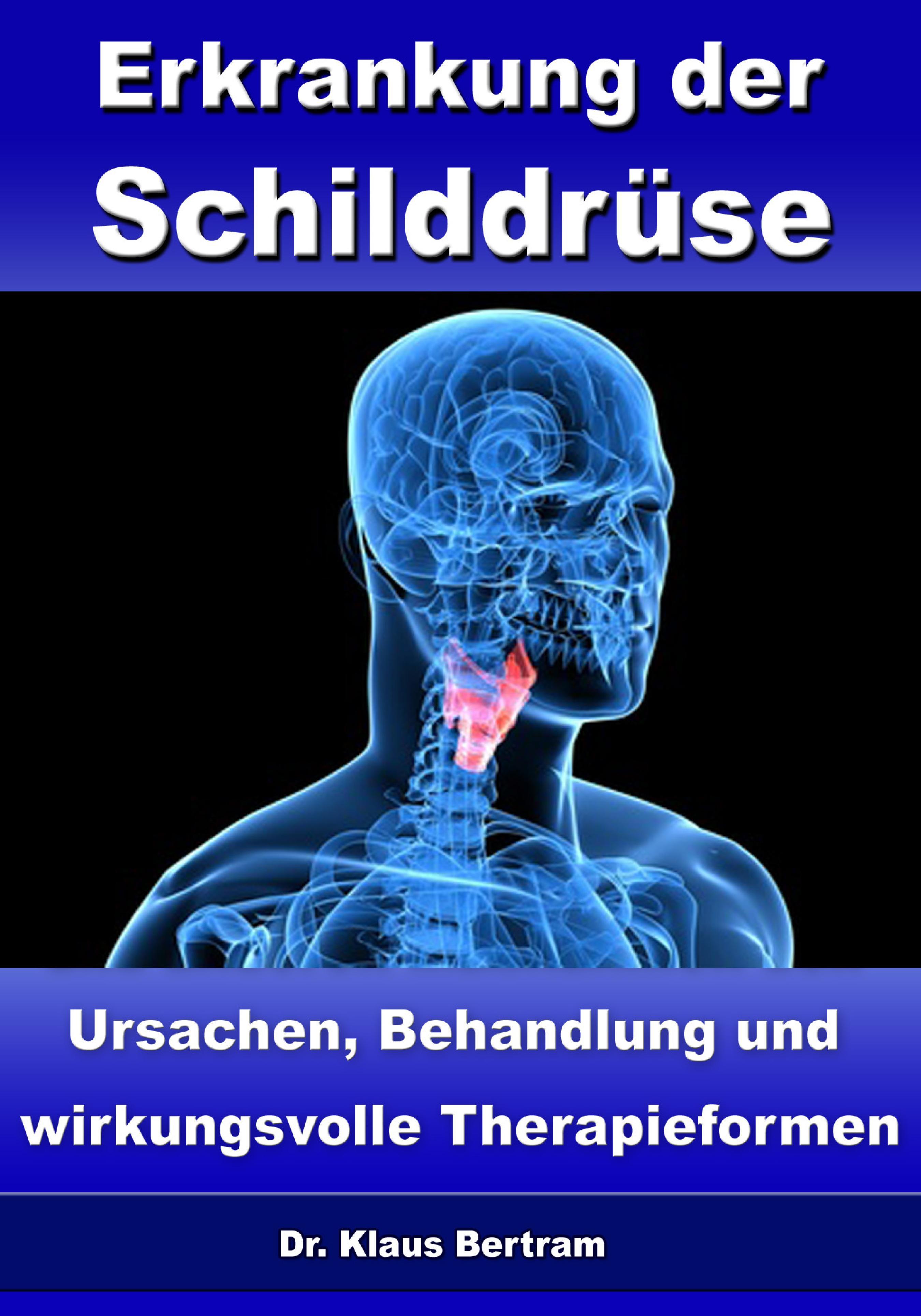 цены Dr. Klaus Bertram Erkrankung der Schilddrüse – Ursachen, Behandlung und wirkungsvolle Therapieformen