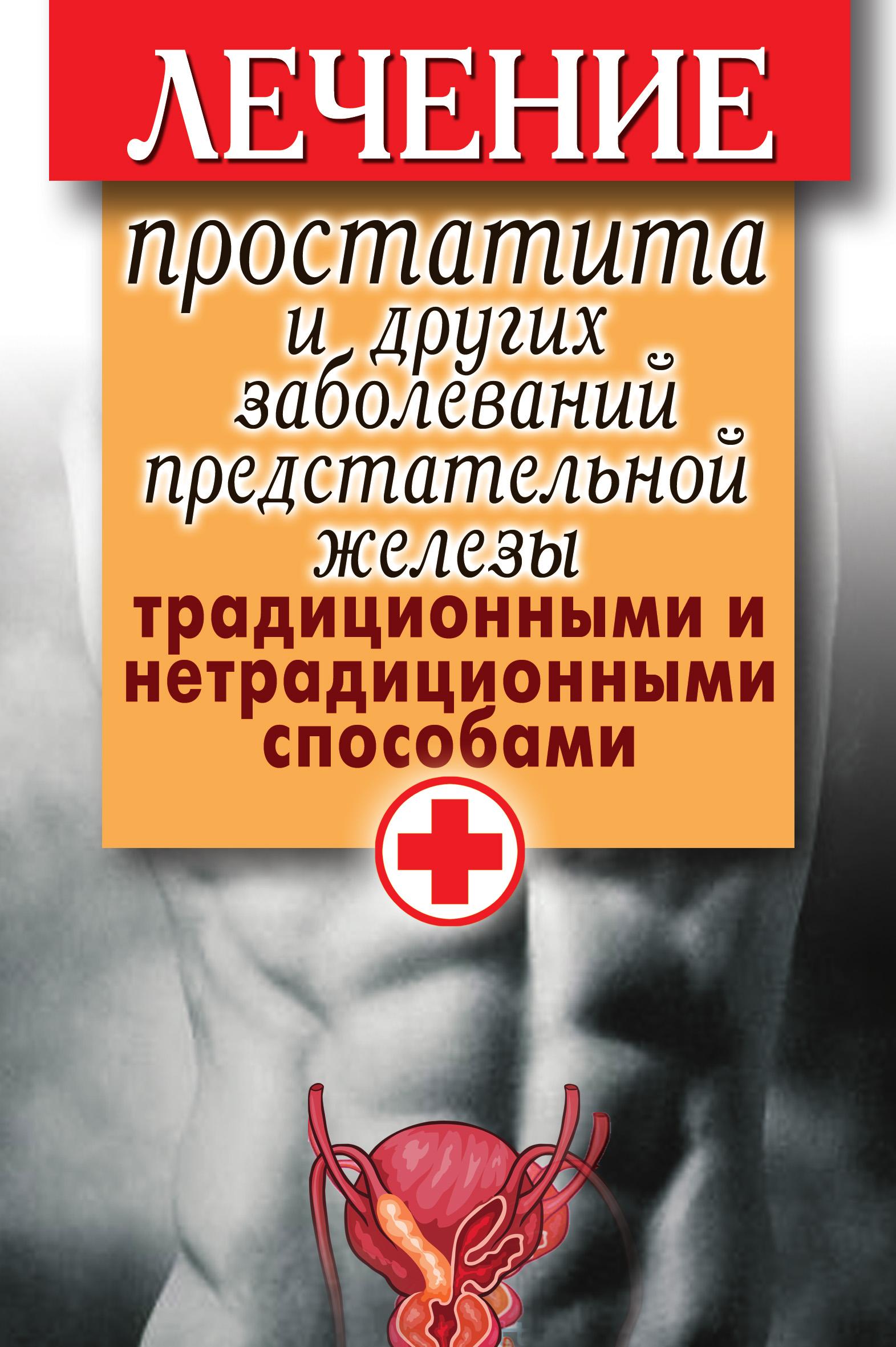 Дарья Нестерова Лечение простатита и других заболеваний предстательной железы традиционными и нетрадиционными способами александров н п болезни предстательной железы