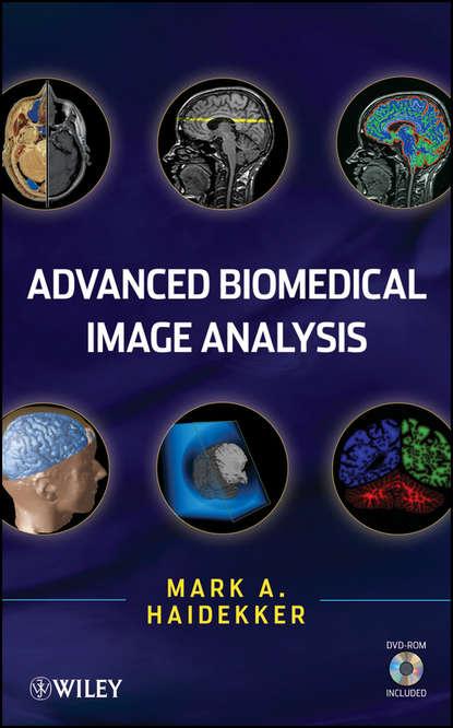 Mark Haidekker Advanced Biomedical Image Analysis недорого