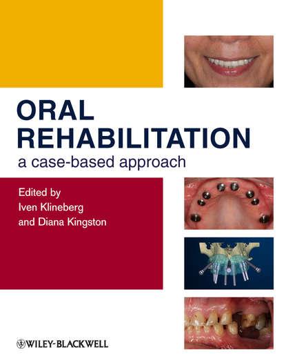 Klineberg Iven Oral Rehabilitation. A Case-Based Approach klineberg iven oral rehabilitation a case based approach