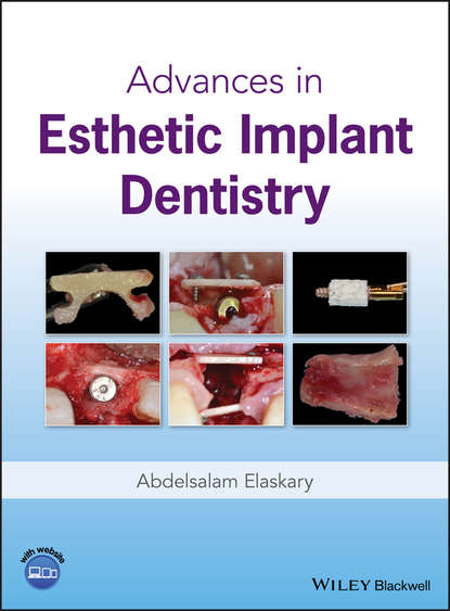 Abdelsalam Elaskary Advances in Esthetic Implant Dentistry marcus hines marketing implant dentistry