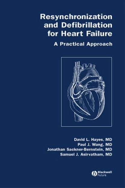 Paul Wang Resynchronization and Defibrillation for Heart Failure недорого
