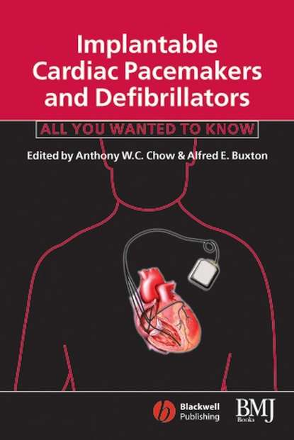 Фото - Anthony Chow WC Implantable Cardiac Pacemakers and Defibrillators tom kenny the nuts and bolts of cardiac pacing