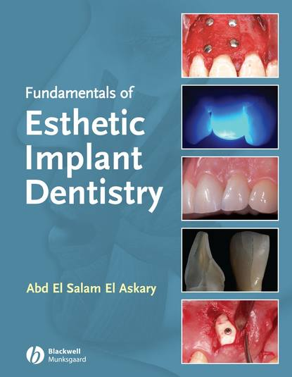 Abdelsalam Elaskary Fundamentals of Esthetic Implant Dentistry marcus hines marketing implant dentistry