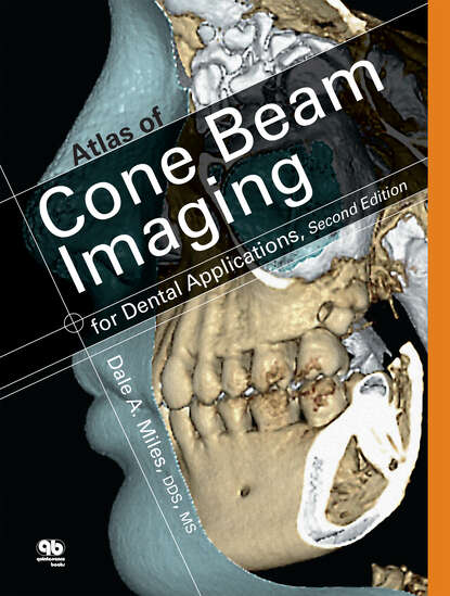 Dale A. Miles Atlas of Cone Beam Imaging for Dental Applications microwave imaging for security applications
