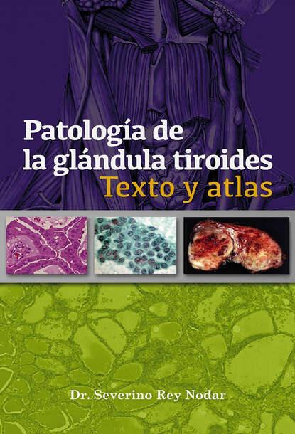 Patolog?a de la gl?ndula tiroides
