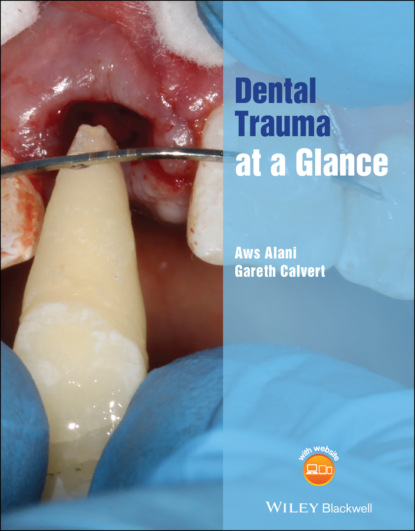 Aws Alani Dental Trauma at a Glance a victor hoffbrand haematology at a glance
