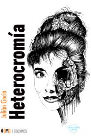 Heterocromía